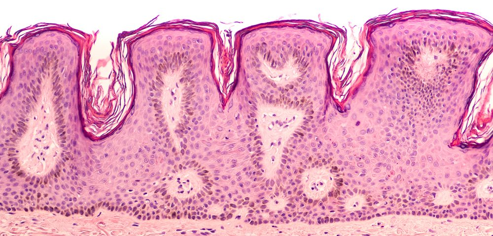 Study Links Eight Genes in Skin to Severity and Progression of Charcot-Marie-Tooth Disease
