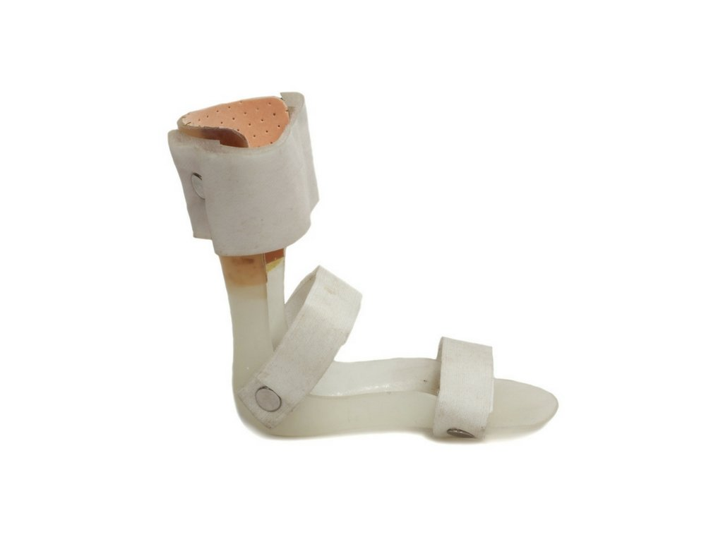 use of orthoses